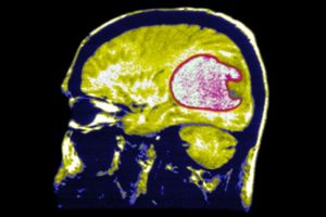 cell phone brain tumor