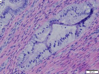 Cervical adenocarcinoma in situ