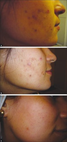 Girll before and after red light therapy treatment for acne vulgaris.