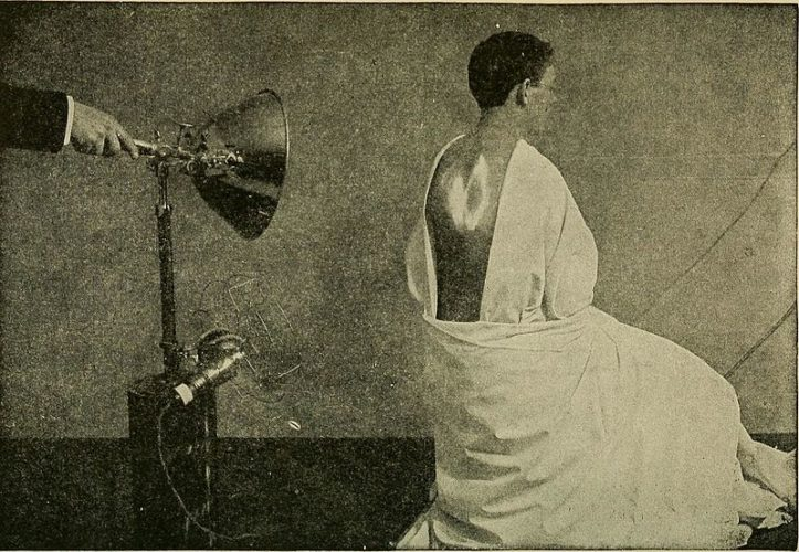 Image depicts an electric arc incandescent light being used therapeutically in 1918. Source: Reclaiming the Maimed: A Handbook of Physical Therapy - Red Light Therapy