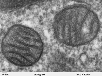 mitochondria in tumors are damaged or injured