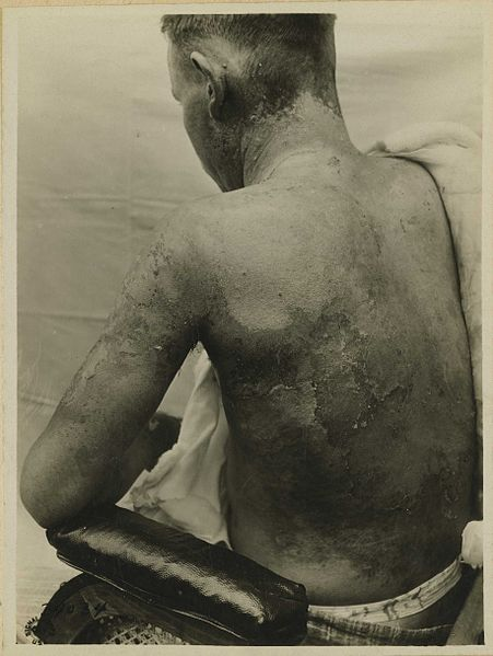 Soldier with mustard gas burns - chemotherapy vs cancer