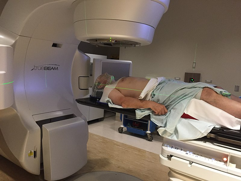 Radiotherapy machine treating patient with oropharyngeal cancer.