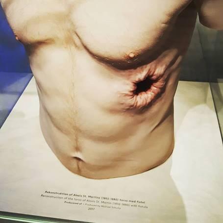 Alexis St. Martin's torso reconstruction sculpture raw meat study