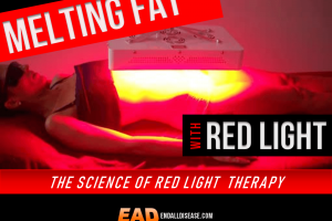 red light weight loss liposuction