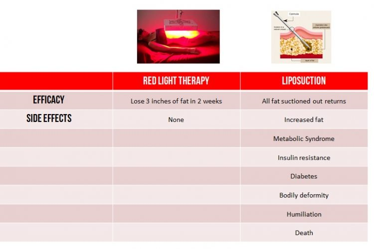 red light compared with liposuction | Weight loss