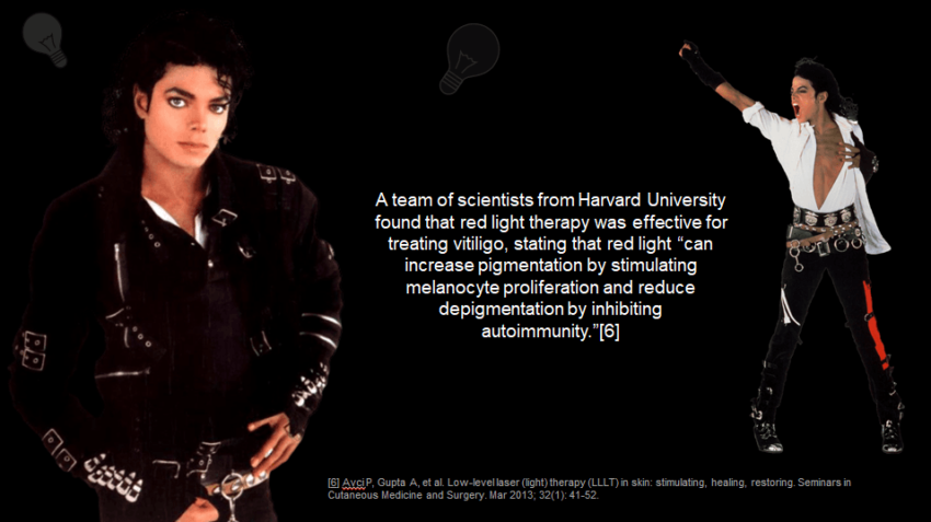 Michael Jackson Vitiligo - can be treated using red light