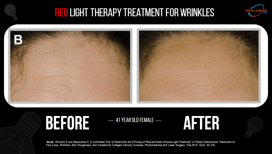 red light therapy for wrinkles before and after pictures