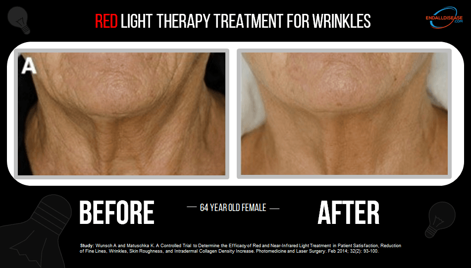 Fine lines and wrinkles visibly reduced with red light therapy