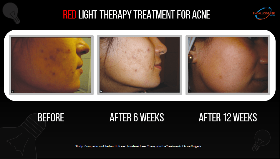 red light therapy for acne before and after